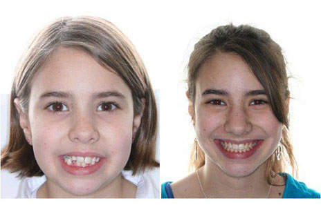 before and after joseph lohner dds ms pa sparta vernon nj